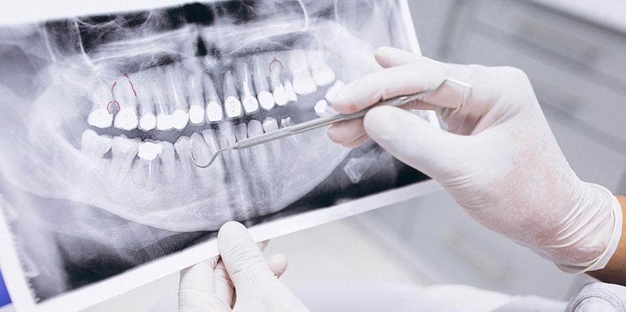 Höjd åldersgräns för fri tandvård